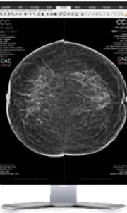 Dématérialisation des mammographies de dépistage